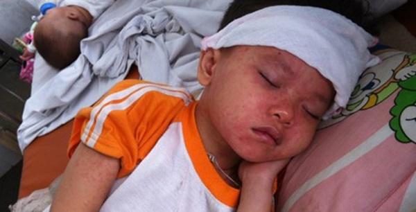 """Nhiều trẻ mắc sởi từ trào lưu anti vắc xin"""": Người lớn a dua, trẻ con chịu trận-1"""