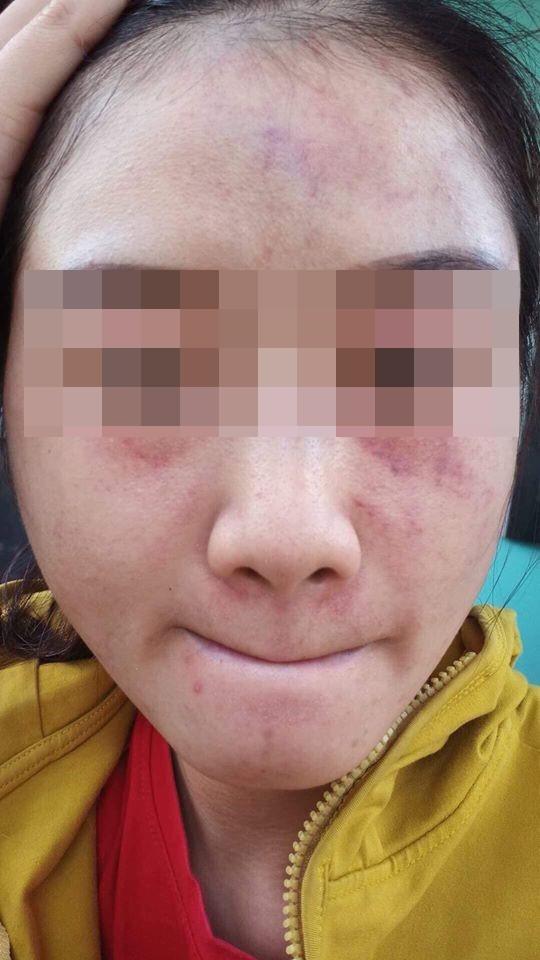 Ca lụy tình khiến MXH sôi máu: Cô gái vẫn tha thứ mặc bạn trai nhiều lần bạo hành dù vào viện như cơm bữa-2