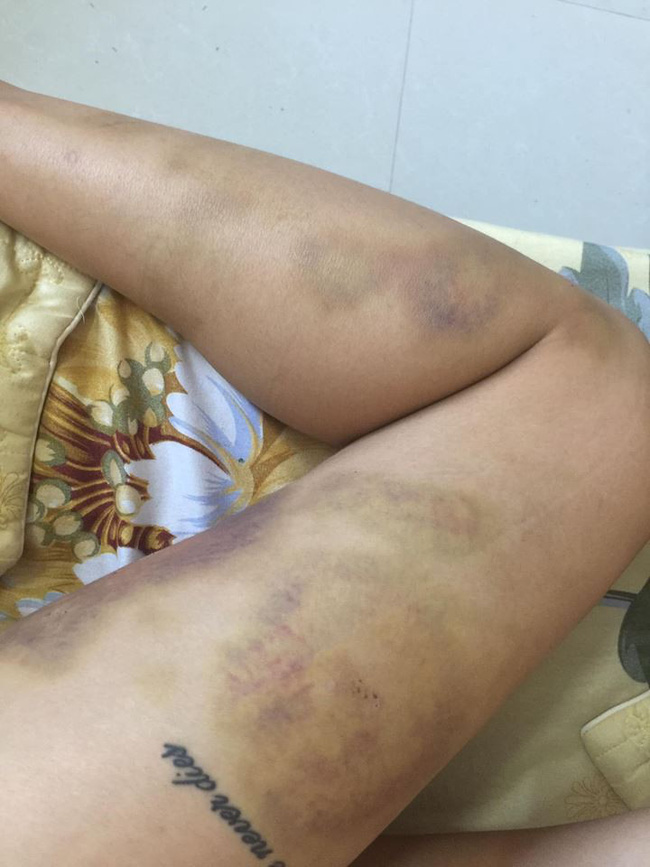 Ca lụy tình khiến MXH sôi máu: Cô gái vẫn tha thứ mặc bạn trai nhiều lần bạo hành dù vào viện như cơm bữa-3