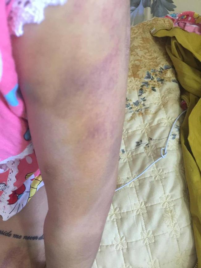 Ca lụy tình khiến MXH sôi máu: Cô gái vẫn tha thứ mặc bạn trai nhiều lần bạo hành dù vào viện như cơm bữa-4