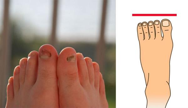 3 kiểu bàn chân của người phụ nữ thiên phú, trường thọ, đã xinh đẹp còn giàu sang khét tiếng 1 vùng-4