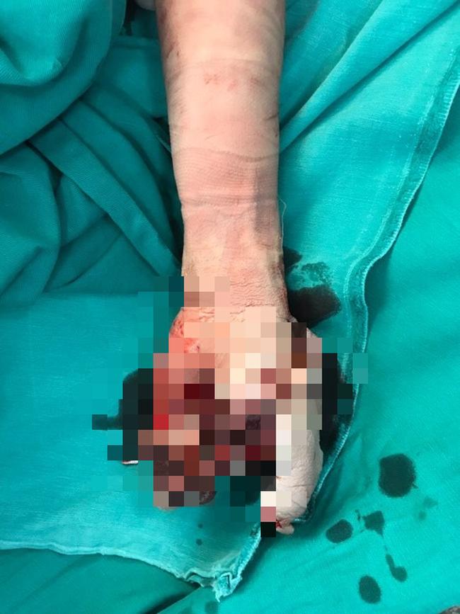 Dùng điện thoại iPhone khi đang sạc, bé trai 13 tuổi bị nổ tung bàn tay-1