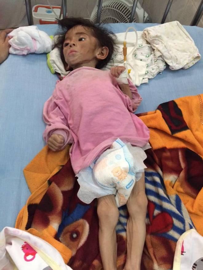 Hình ảnh mới nhất của bé gái Lào Cai bị suy dinh dưỡng: Cằm nhọn, cao lớn không nhận ra-1