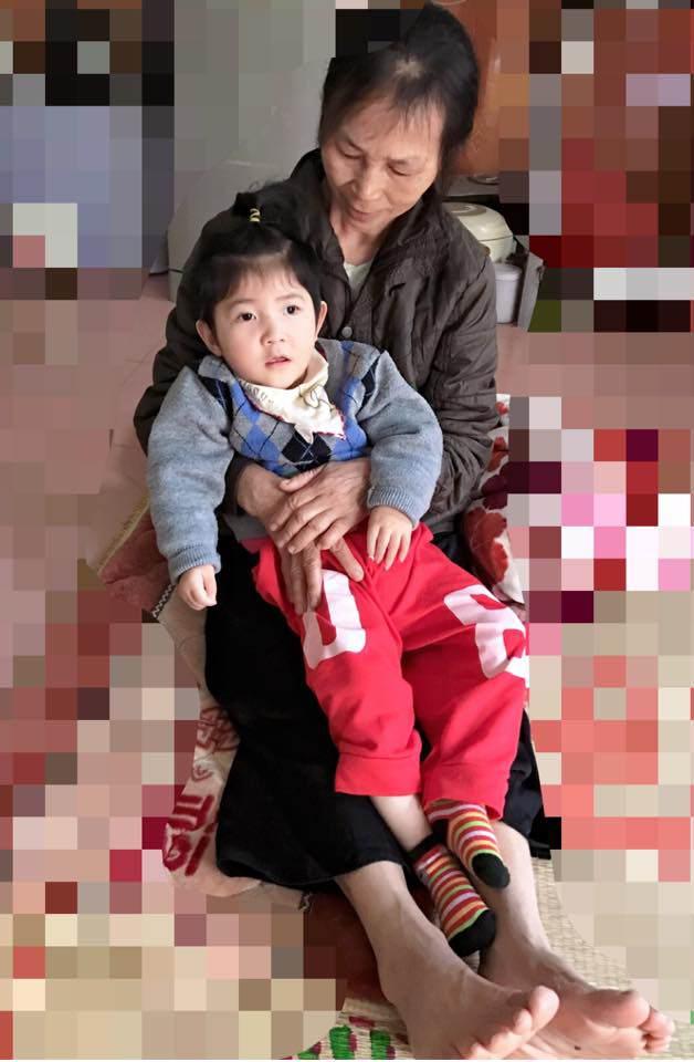 Hình ảnh mới nhất của bé gái Lào Cai bị suy dinh dưỡng: Cằm nhọn, cao lớn không nhận ra-2