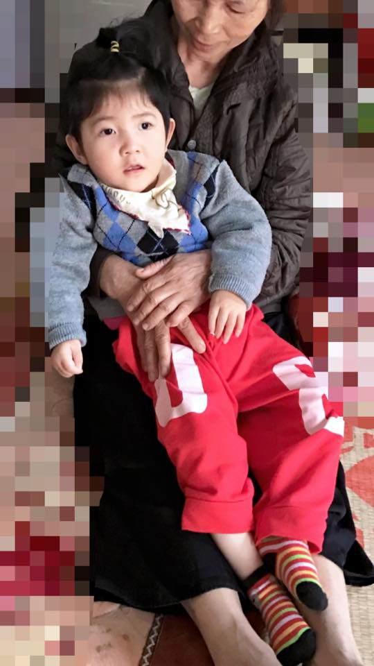 Hình ảnh mới nhất của bé gái Lào Cai bị suy dinh dưỡng: Cằm nhọn, cao lớn không nhận ra-3