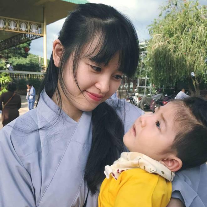 Hình ảnh mới nhất của bé gái Lào Cai bị suy dinh dưỡng: Cằm nhọn, cao lớn không nhận ra-4