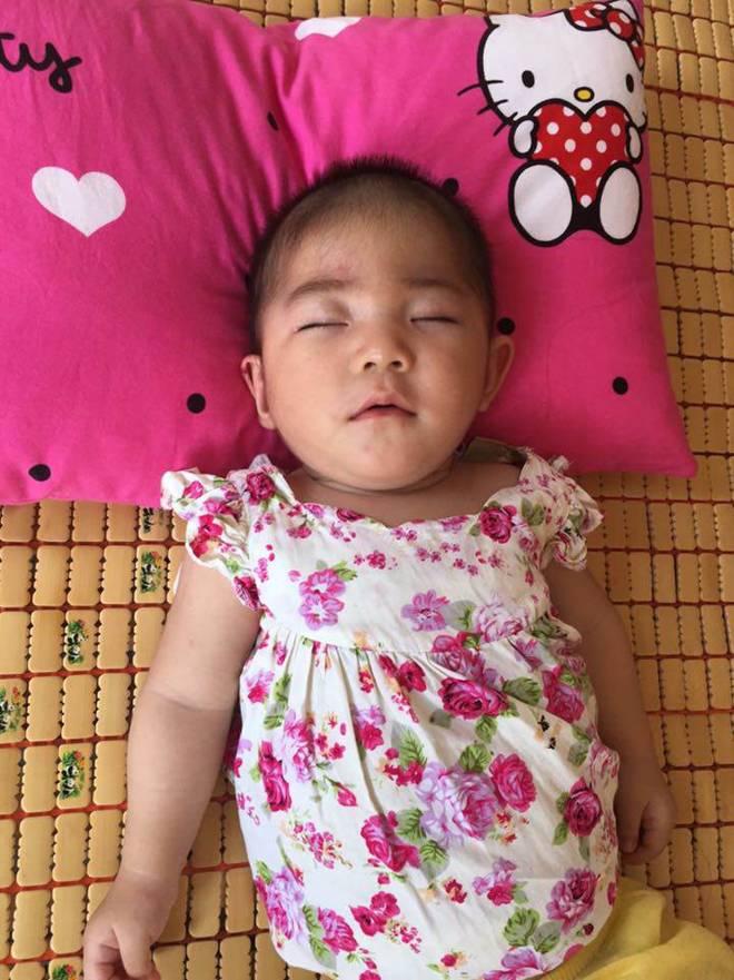 Hình ảnh mới nhất của bé gái Lào Cai bị suy dinh dưỡng: Cằm nhọn, cao lớn không nhận ra-10