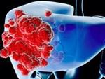 Tưởng cảm lạnh hóa ra ung thư phổi-2
