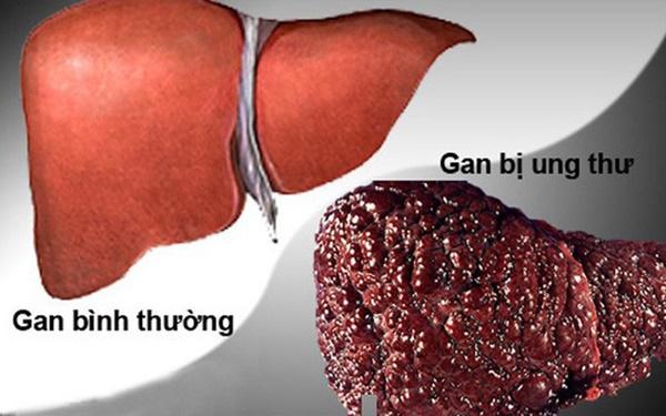 Ung thư gan đứng đầu trong các bệnh ung thư ở VN: GĐ BV Ung bướu chỉ 5 dấu hiệu cảnh báo-1