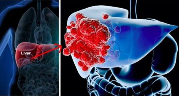 Ung thư gan đứng đầu trong các bệnh ung thư ở VN: GĐ BV Ung bướu chỉ 5 dấu hiệu cảnh báo-2