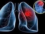 5 dấu hiệu ung thư phổi bạn không nên bỏ qua-2