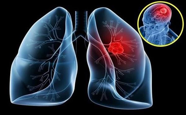 Tưởng cảm lạnh hóa ra ung thư phổi-1
