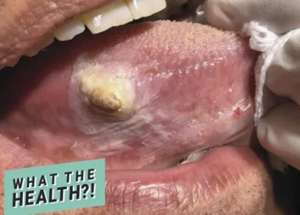 Dấu vết lạ trên lưỡi người đàn ông này hóa ra là một dạng ung thư hiếm gặp-1