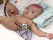 Bất cẩn để điện thoại rơi trúng đầu con, bé gái 2 tháng tuổi bị chấn thương sọ não