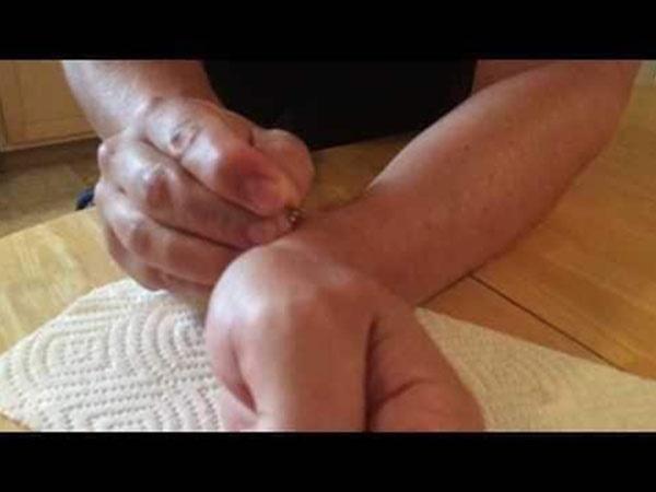 Ca chữa bệnh kỳ quái nhất lịch sử loài người: tự tiêm tinh dịch vào tay để chữa đau lưng-2