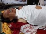 Nhân chứng kể phút cuồng loạn của gã thầy bói chém 4 người trong gia đình thương vong ở Nam Định-4