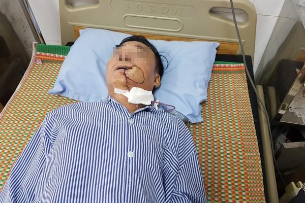 Tưởng bị nhiệt miệng, người đàn ông Hà Nội phải cắt 1 góc má vì ung thư-1