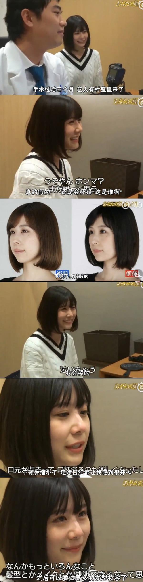 Bị chê bai không xinh bằng em gái suốt 3 năm, mỹ nhân Nhật Bản ghi lại toàn bộ quá trình thẩm mỹ trong nước mắt-5