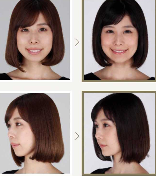 Bị chê bai không xinh bằng em gái suốt 3 năm, mỹ nhân Nhật Bản ghi lại toàn bộ quá trình thẩm mỹ trong nước mắt-6
