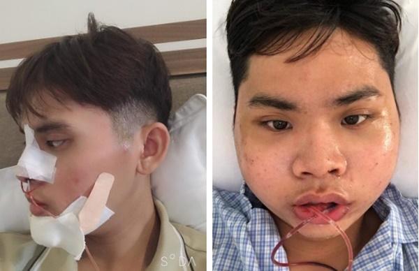Chi 160 triệu và cả tháng trời không thể đánh răng: Câu chuyện về chàng trai trẻ PTTM vì nỗi tự ti mặt vuông gây sốt cộng đồng mạng-5