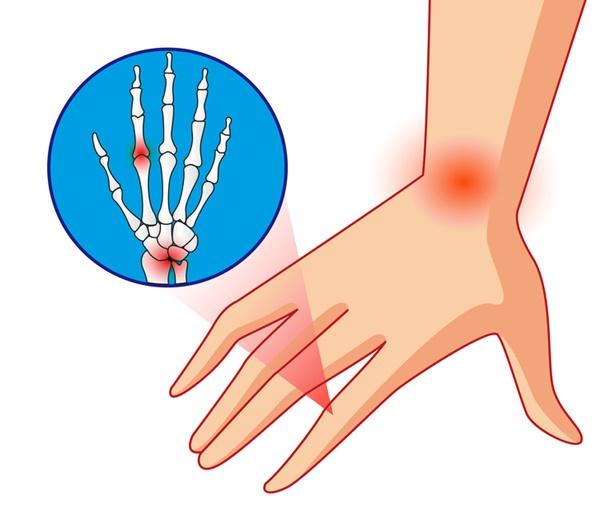 Những dấu hiệu giúp bạn tự phát hiện sớm 10 bệnh nguy hiểm phổ biến nhất hiện nay-3