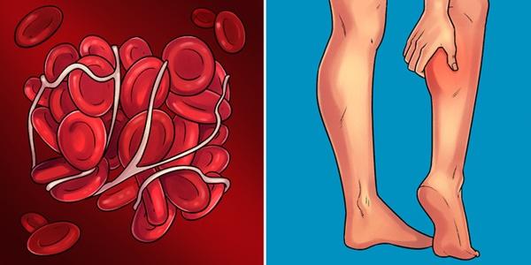 Những dấu hiệu giúp bạn tự phát hiện sớm 10 bệnh nguy hiểm phổ biến nhất hiện nay-9