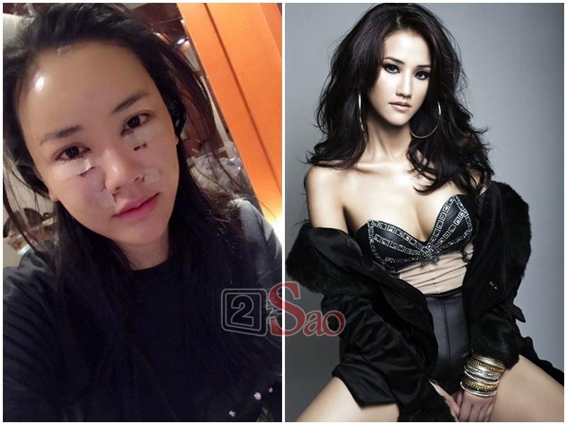 Loạt sao Việt nghiện khoe dung nhan dù biết rõ đẹp nhờ phẫu thuật thẩm mỹ-10