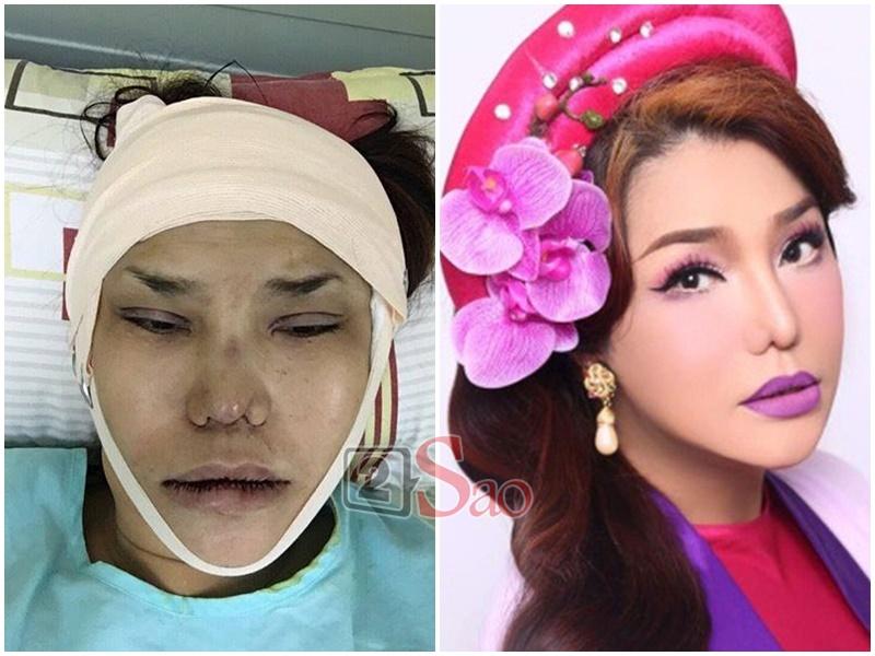 Loạt sao Việt nghiện khoe dung nhan dù biết rõ đẹp nhờ phẫu thuật thẩm mỹ-11