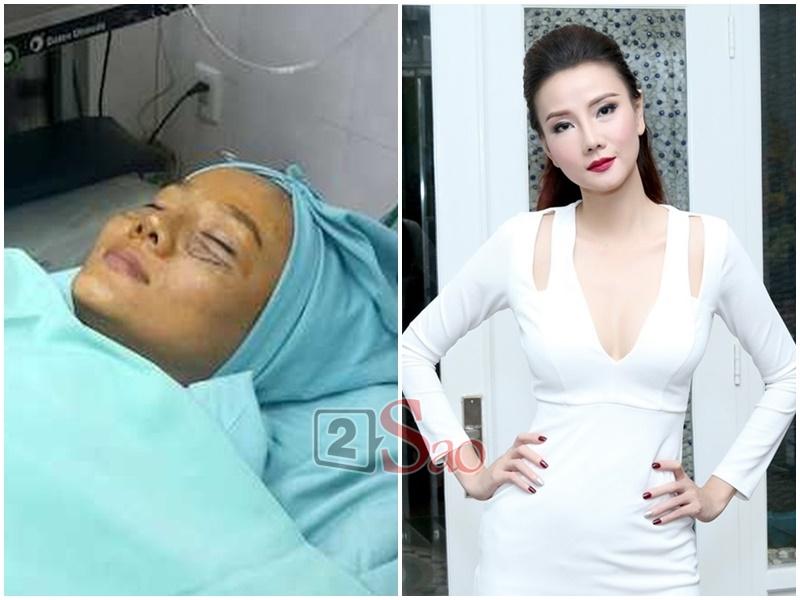 Loạt sao Việt nghiện khoe dung nhan dù biết rõ đẹp nhờ phẫu thuật thẩm mỹ-12