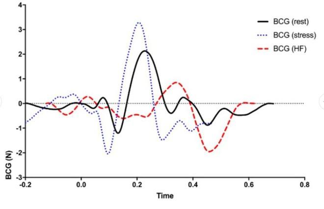 Bồn cầu cao cấp có khả năng đo nhịp tim khi người dùng đi trút bầu tâm sự, tại sao không?-5