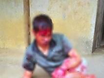 Bắc Giang: Thanh niên tâm thần bị hàng xóm chém 7 nhát vì làm đổ tường gạch và gãy cây cối trong vườn