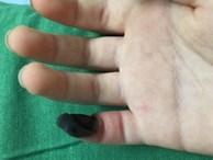 Bé gái hoại tử ngón tay vì tự chữa mụn cóc bằng thuốc mua trên mạng