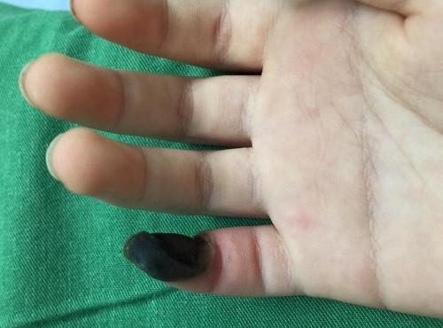 Bé gái hoại tử ngón tay vì tự chữa mụn cóc bằng thuốc mua trên mạng-1