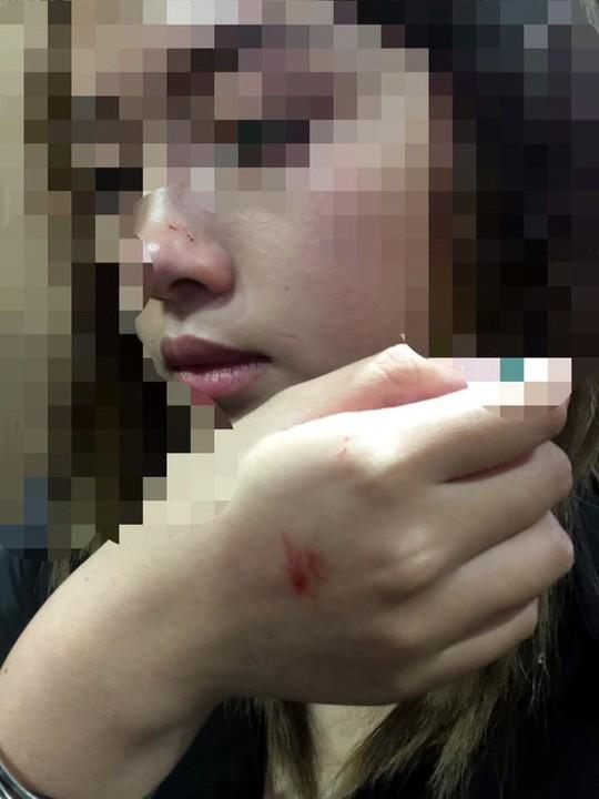 Nữ sinh viên bị cưỡng hôn trong thang máy lên tiếng sau khi làm việc với công an-2