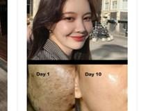 Làn da sẽ hưởng cả tá tác dụng khi lấy đá lạnh lăn lên mặt, nhưng nếu dùng sai cách thì da xấu không cứu vãn nổi