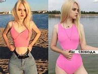 'Búp bê song sinh' nước Nga gây sốc vì eo bé chỉ bằng gang tay