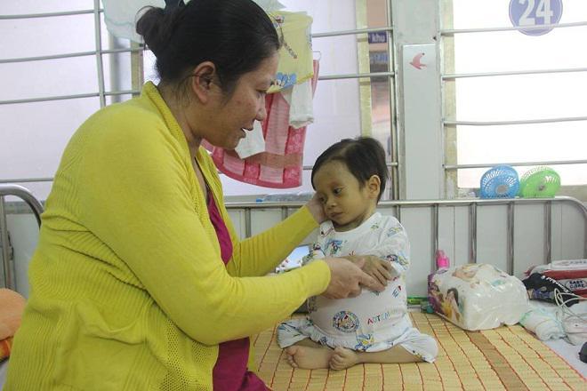 Sau sinh 1 tháng, mẹ bật khóc khi nghe bác sĩ thông báo tình hình sức khỏe của con-2