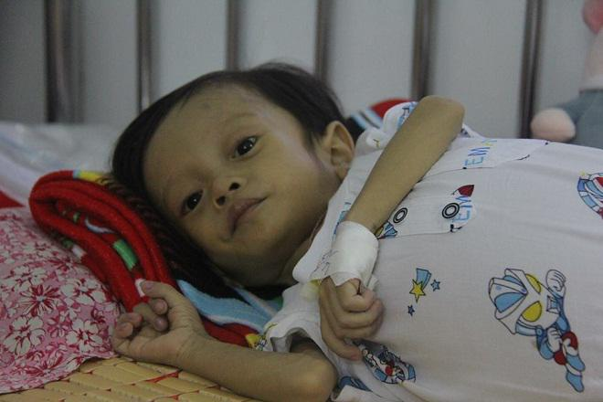 Sau sinh 1 tháng, mẹ bật khóc khi nghe bác sĩ thông báo tình hình sức khỏe của con-3
