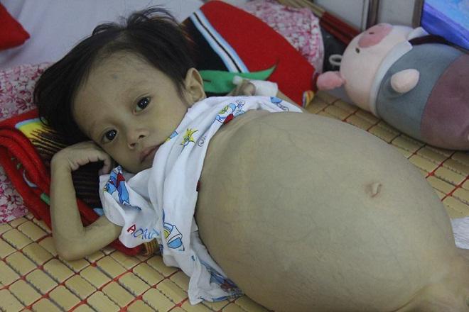 Sau sinh 1 tháng, mẹ bật khóc khi nghe bác sĩ thông báo tình hình sức khỏe của con-4
