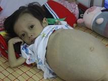 Sau sinh 1 tháng, mẹ bật khóc khi nghe bác sĩ thông báo tình hình sức khỏe của con