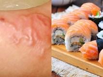 Top món ăn khoái khẩu nhưng khiến người ăn sẽ gặp nguy cơ nhiễm sán cực cao
