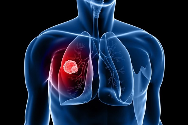5 dấu hiệu ung thư phổi bạn không nên bỏ qua-1