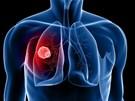 5 dấu hiệu ung thư phổi bạn không nên bỏ qua
