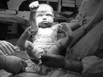 Khoảnh khắc bé trai chào đời giơ tay như Superman 'giải cứu thế giới' gây bão MXH