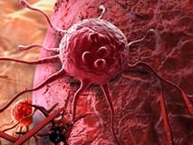 Sự thật về phương pháp chữa ung thư tốn tiền tỷ, được quảng cáo ức chế 80% tế bào ung thư