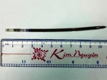 Thanh niên nuốt ruột bút bi dài hơn 10cm vào bụng