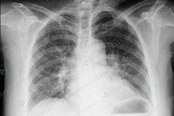 Nữ bệnh nhân bị nhồi máu cơ tim cấp do ong đốt và khuyến cáo của bác sĩ cho người trẻ tuổi-1