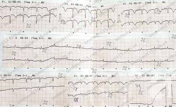 Nữ bệnh nhân bị nhồi máu cơ tim cấp do ong đốt và khuyến cáo của bác sĩ cho người trẻ tuổi-3