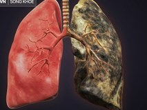Bệnh về phổi ngày càng phổ biến: Hãy ăn những thực phẩm này để ngăn ngừa bệnh