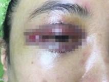 Biến chứng khi cắt mí, cô gái 19 tuổi 'khóc' ra máu suốt 8 tiếng